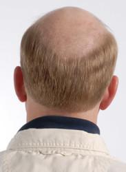 Prenses Peruk - Doğal Saç Protezi Tupe