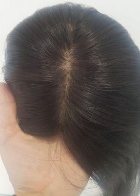 Gerçek Saç Medikal Tepelik Uzun Boy Doğal Görünüm