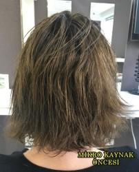 Mikro Kaynak İle Saçlarınıza Hacim Kazandırabiliriz - Thumbnail