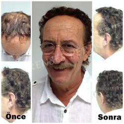 - Protez Saç