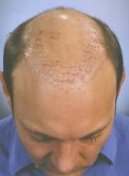 - Protez Saç Tepelik Toupee Doğal Saç