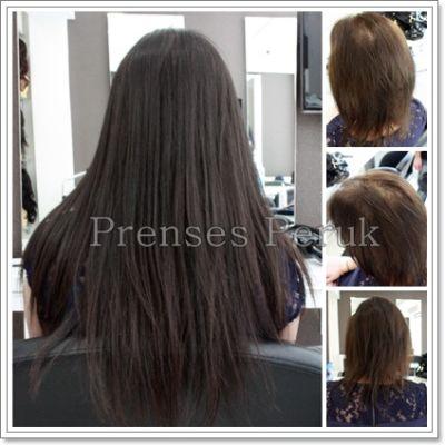 Saç Yoğunlaştırmak İçin Mikro Kaynak